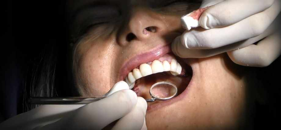 implantologia poco osso impianti dentali senza osso