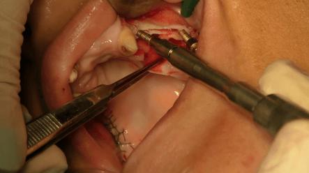 impianti dentali fissi con poco osso