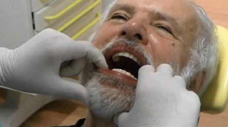 impianti dentali a acarico immediato032