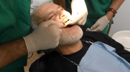 impianti dentali a carico immediato019