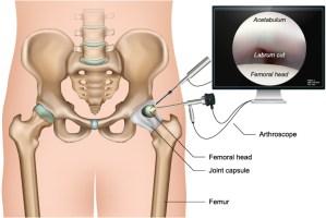 Operatives Verfahren zur Behandlung eines Hüftimpingement - Hüftarthroskopie
