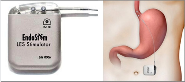 EndoStim LES treatment for GERD www.implantable-device.com David Prutchi PhD