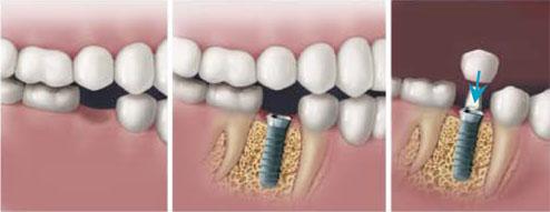dentist India