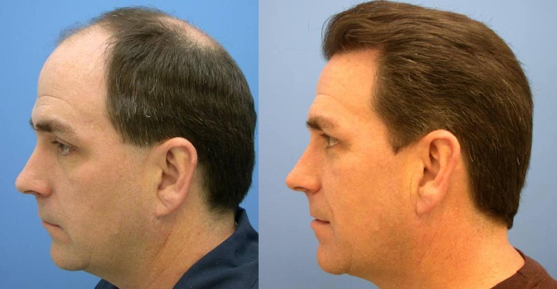 implante capilar antes e depois.jpg