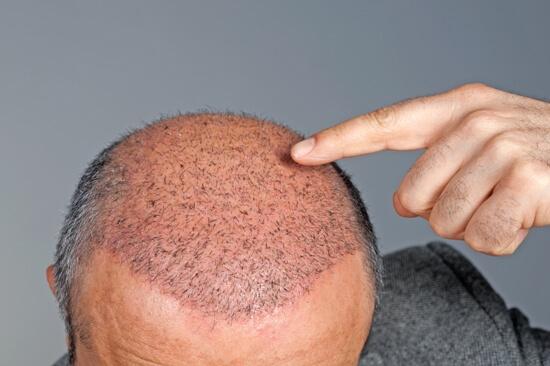 transplante-de-cabelo