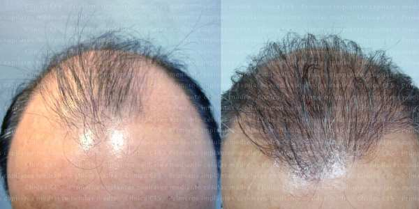 hair regeneration with stem cells - Toni