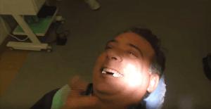 implantologia a carico immediato prezzi video foto paziente dal vivo