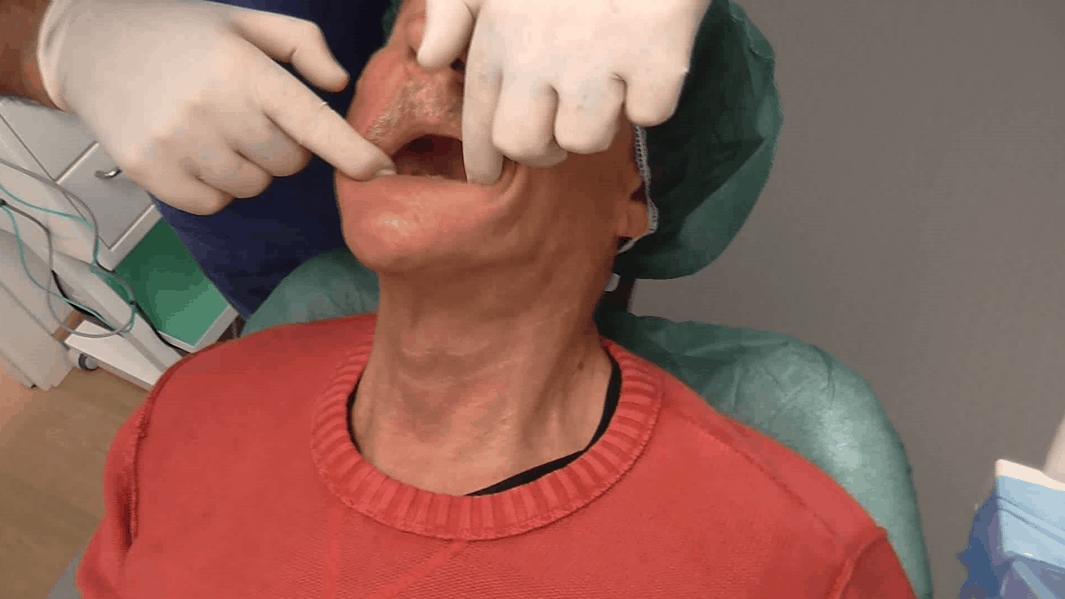 impianti dentali implantologia a carico immediato senza osso