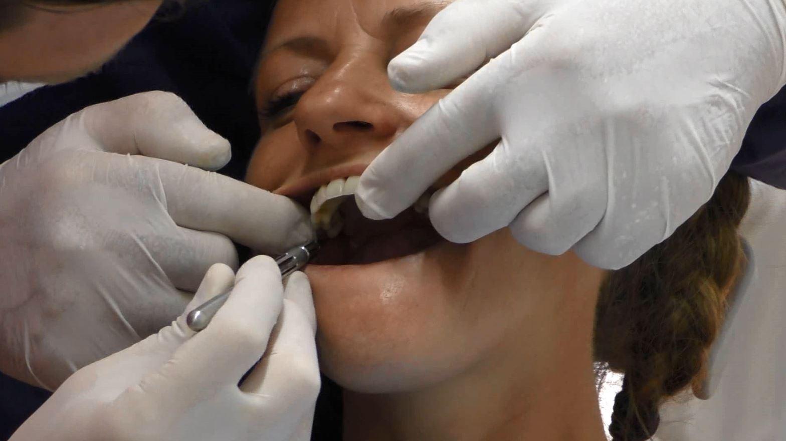 Riabilitazione implantare fissa su paziente con grave atrofia mascellare e mandibolare