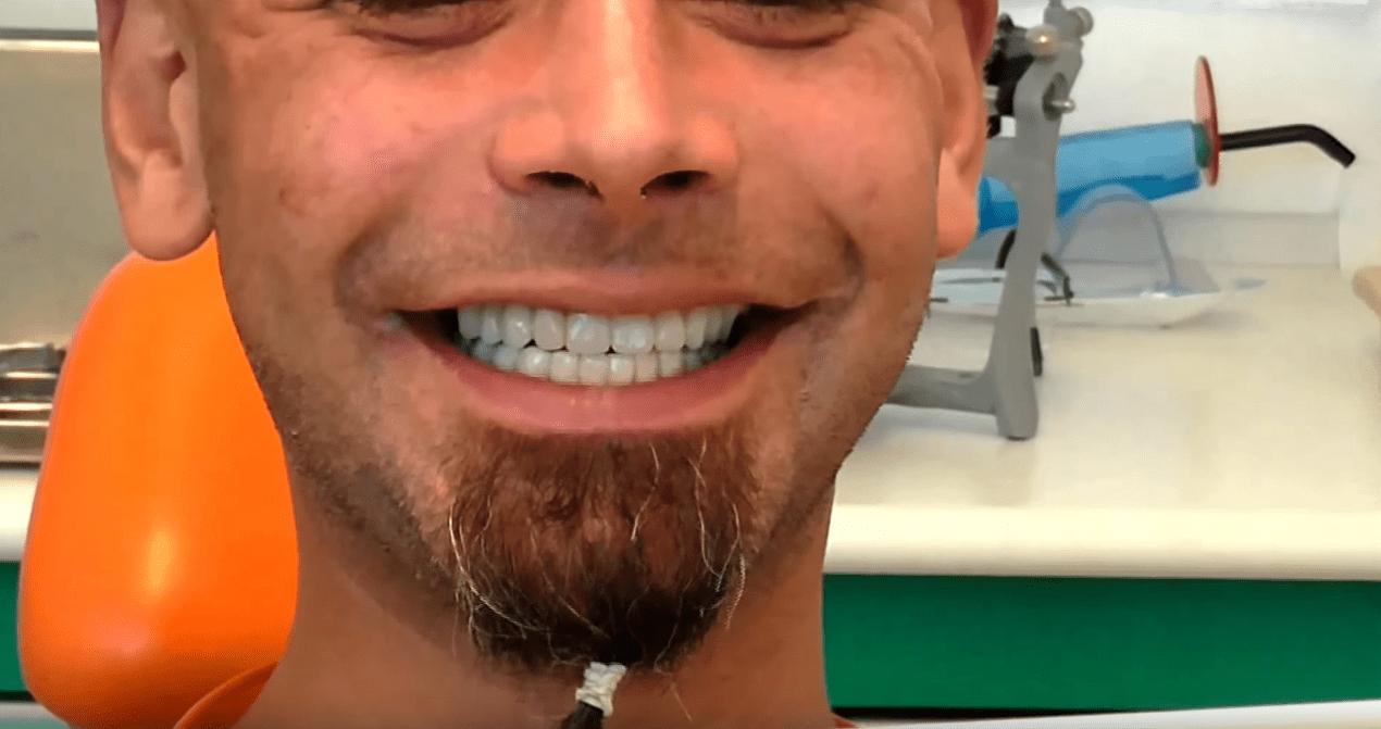 Implantologia senza gengiva finta