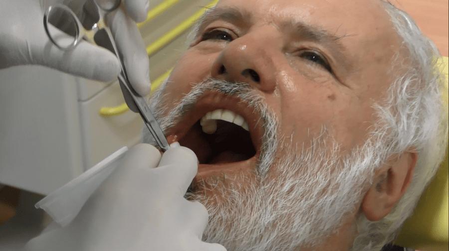 Implantologia senza gengiva