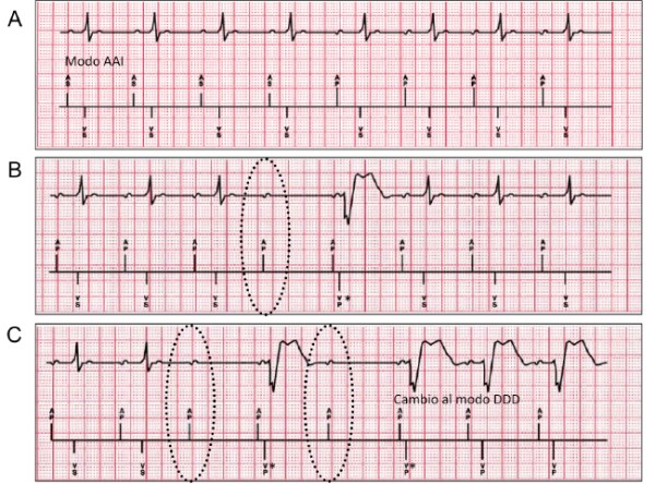 managed ventricular pacing mvp feature medtronic academy - 650×482