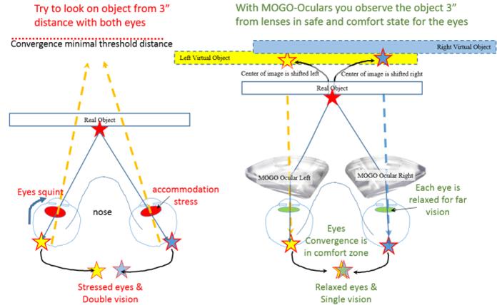 MOGO-OCULARs Description