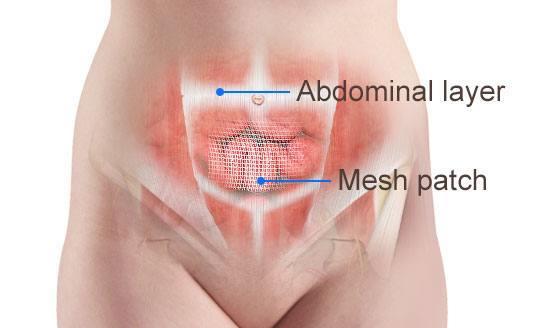 Resultado de imagem para incisional hernia