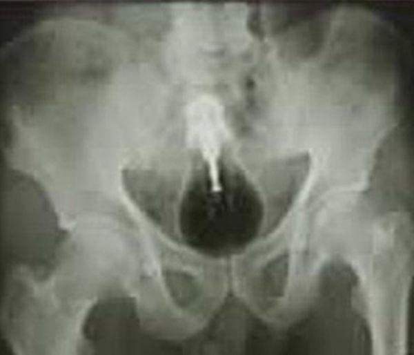 a-glass-light-bulb-in-anus