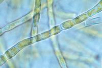 Chrysophyceae - Golden Algae