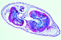 Hydra with food in the digestive cavity, t.s. through body