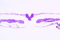Chicken, 36 hour, t.s. with neural tube, notochord, differentiation of mesoderm (myotom, nephrotom and splanchnotom)