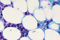 Adipose tissue, human, sec. fat removed to show the cells