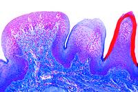 Tongue, human, sec. with fungiform papillae