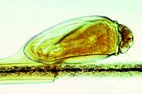 Pediculus humanus capitis, ova w.m.