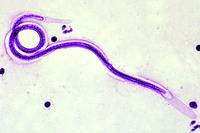 Microfilaria, smear from bird lung with parasites w.m. *