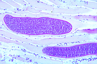 Sarcocystis tenella in heart muscle, sec.