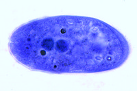 Balantidium coli, human parasite, smear with trophozoites *