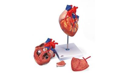 Heart with Bypass, 2 times life size, 4 part
