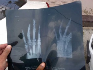 An X – ray displaying Benn Jr. broken fingers.