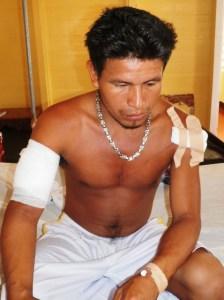 The injured Alfro Harris.