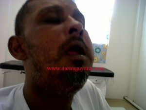 Asif Rahim's swollen face after the alleged police beating.