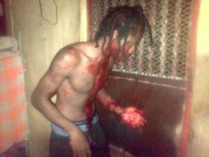 The injured prisoner, Tambico Mackenzie