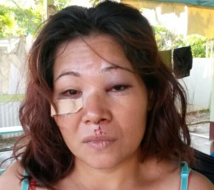 The injured Miriam Hoosain