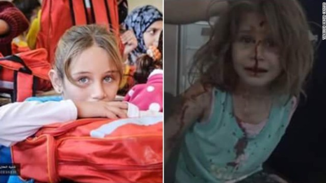Activists posted a poster of two images of Aya, before and after a strike hit her town of Talbiseh (CNN/