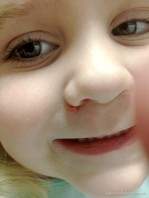 kaylas_nose