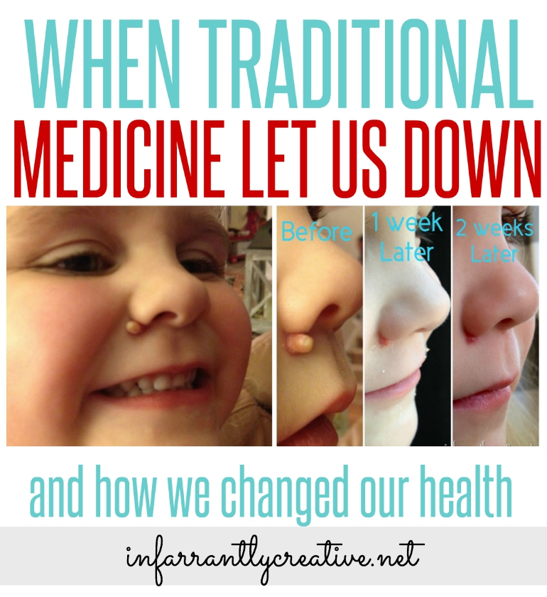 When Traditional Medicine Let us Down