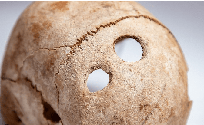 Holes in the skull: Skilled surgeons lived in ancient Moldova
