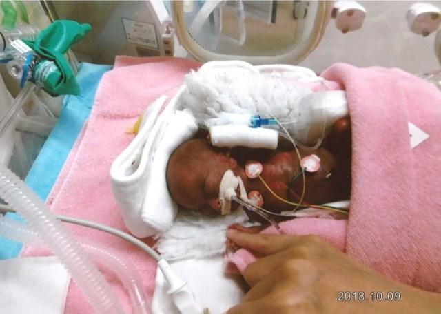 El en la sala neonatal.(Photo by Handout / Nagano Children's Hospital / AFP)