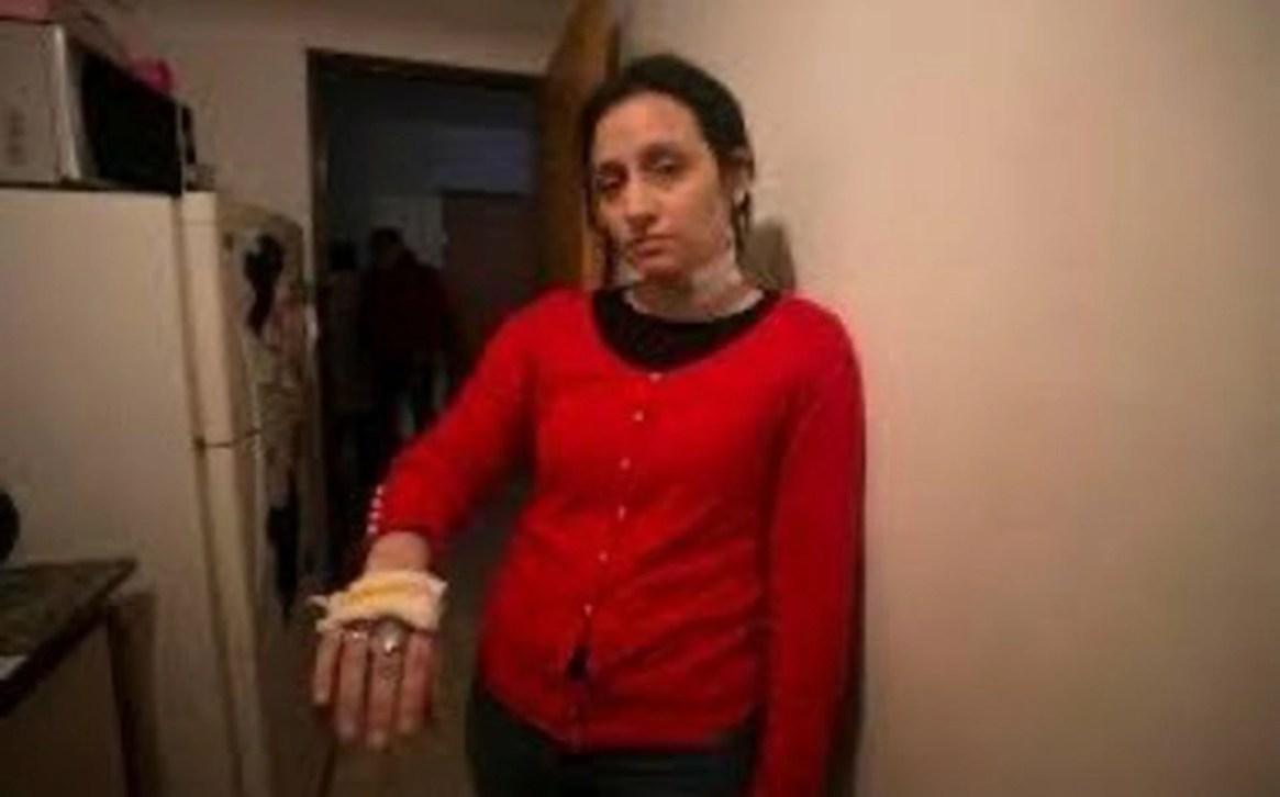 """Melina denunció a su ex por """"intento de homicidio"""". Asegura que la atacó en la vía pública con una trincheta y que le cortó los brazos y el cuello"""