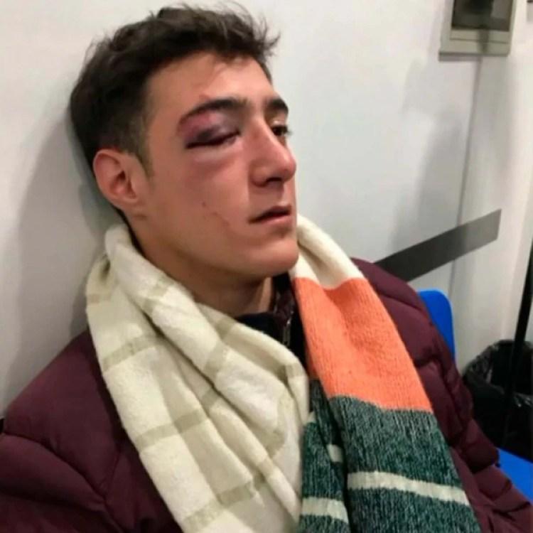 Emiliano sufrió una factura orbital y podría tener un desplazamiento de retina