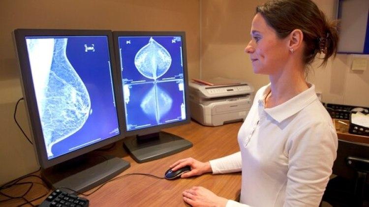 Una campaña ofrece telemamografías gratuitas en el norte del país (Getty)