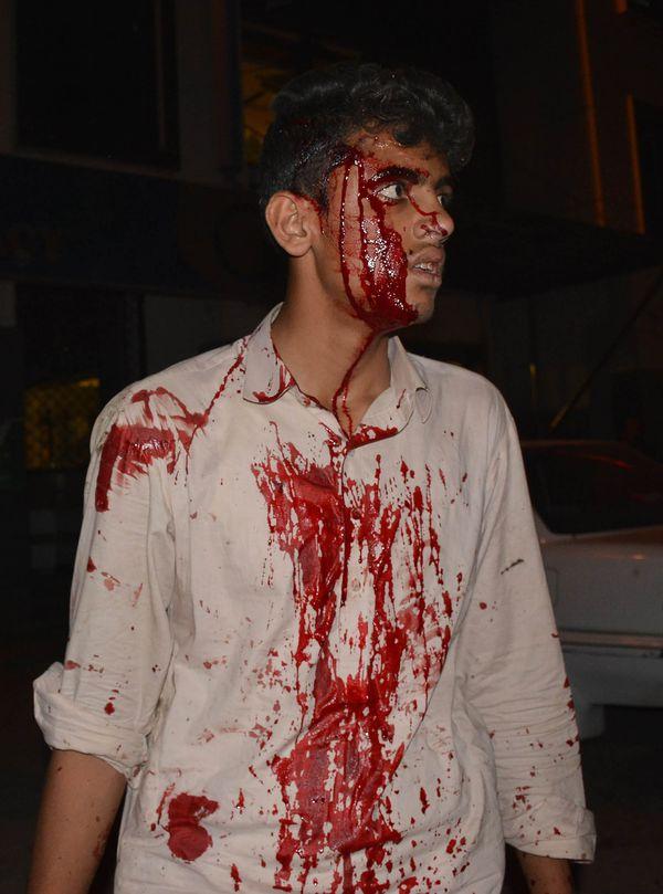 Uno de los heridos en la violenta explosión (AFP)