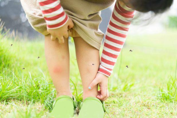 Ante una picadura, lo recomendable es hacer compresas de agua para bajar la inflamación(Shutterstock)
