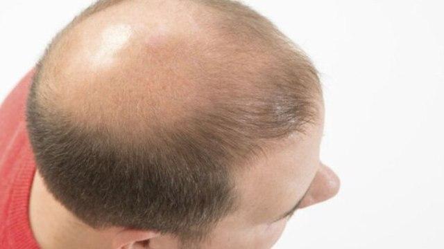 Pronto estará en camino una crema tópica para curar la calvicie o para evitar que el cabello se vuelva gris. (Foto: archivo)
