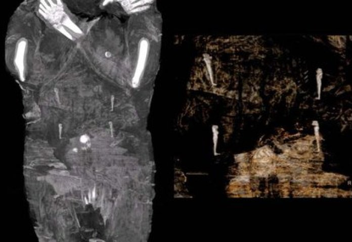 X-ray images of the pregnant Egyptian mummy were taken in 2015 at a medical center in Otwock, near Warsaw, Poland (AFP)