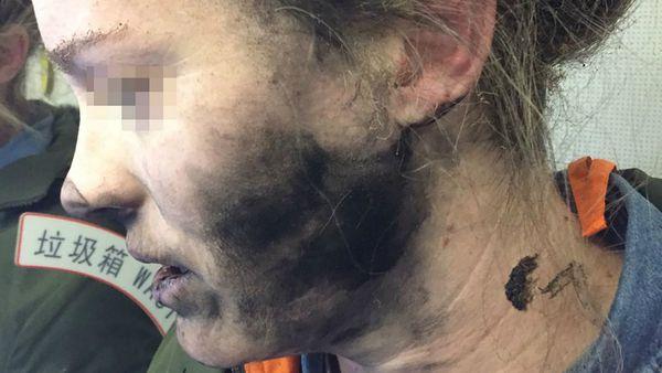La mujer se le quemó parte de su rostro. (AFP)