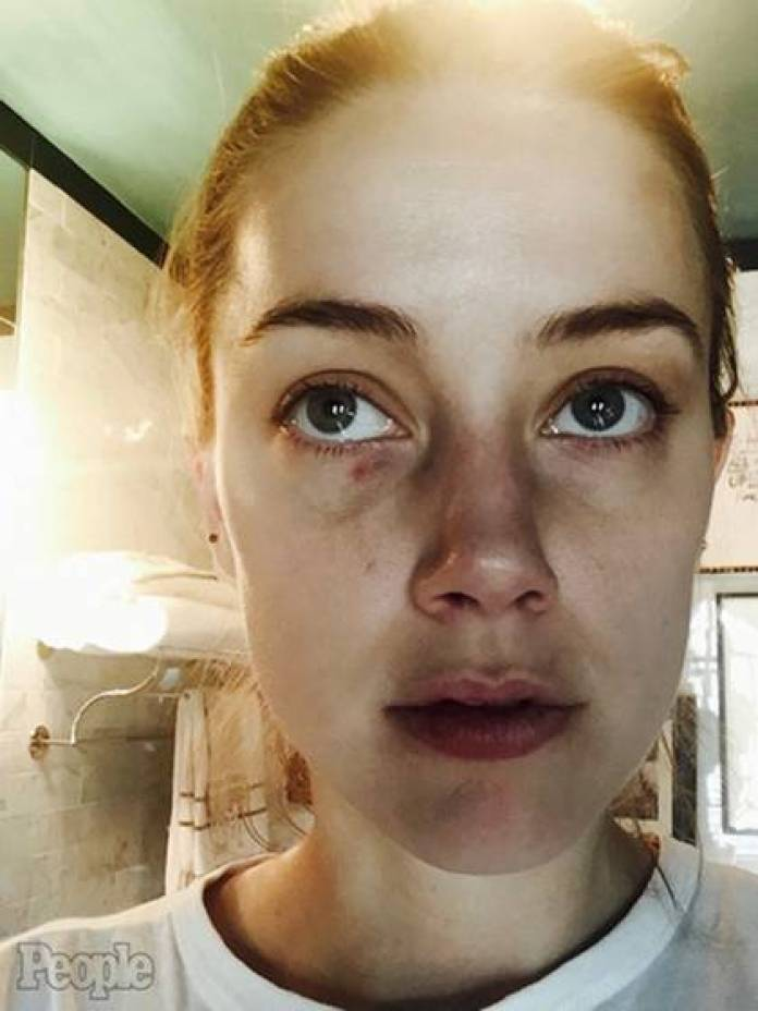 Amber Heard accused Johnny Depp of abuse and showed his face beaten