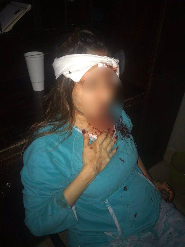 Las fotografías de Abril en el hospital, su testimonio y el de su hijo que presenció el ataque con un bat no bastaron para que el juez reprobara la conducta de García.