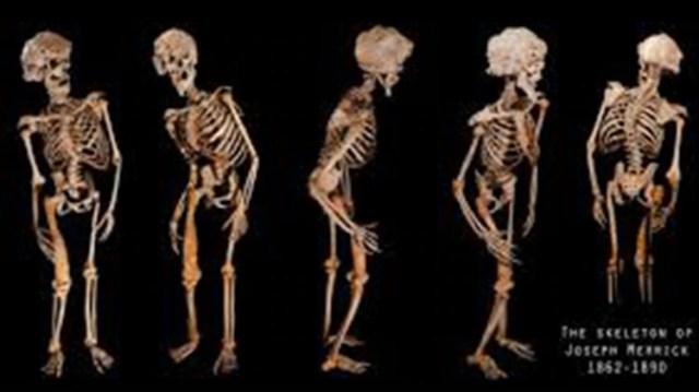 El esqueleto de Joseph Merrick fue exhibido en el Museo del Hospital Royal de Londres.